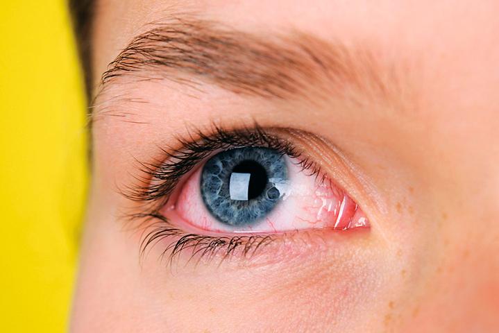 Признаки аллергического конъюнктивита